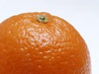 Что такое целлюлит и что общего у него с апельсином?